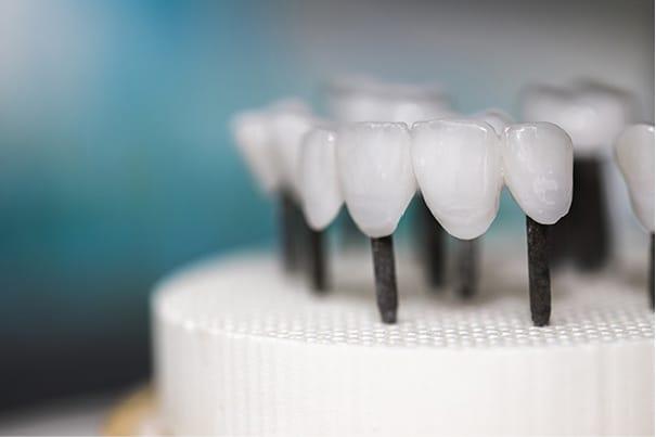 XIV Curso «El estudio de la estética dental»